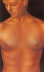 Postoperative appearance male breast reduction photo