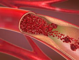 The ABC's of coronary artery disease