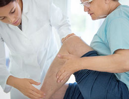 Varicose Veins: Cosmetic concern or health risk